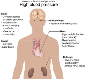 Negative Effects of Hypertension
